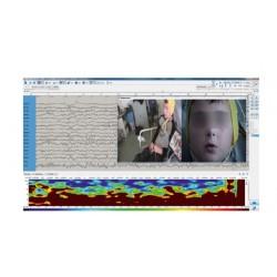 VideoEEG module