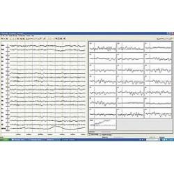 Brain Vision Recorder Software